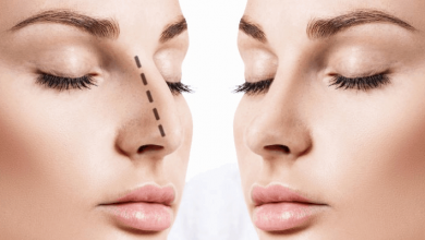 Facial Implants